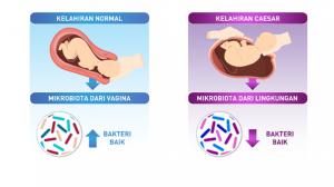 tips optimalkan imunitas anak kelahiran caesar